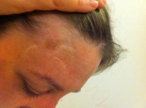 La cicatriz en la frente, 10 años después